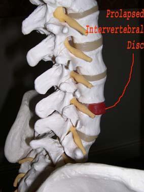 Osteopathy - Sciatica
